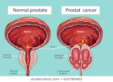 Prostate cancer: Symptoms, Causes and Prevention