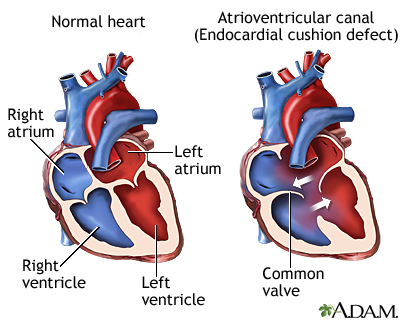 Ventricular septal defect ( VSD )