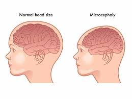 Learn about microcephaly