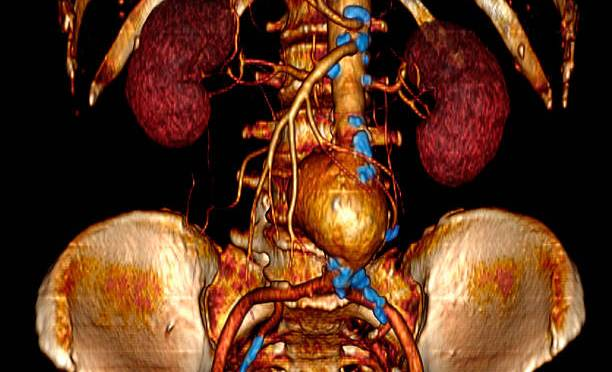 Abdominal Aortic Aneurysm: Causes, Symptoms And Prevention
