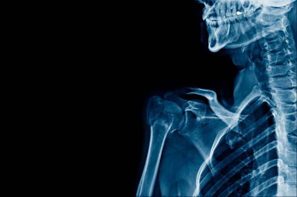 Full frame shot of X-ray